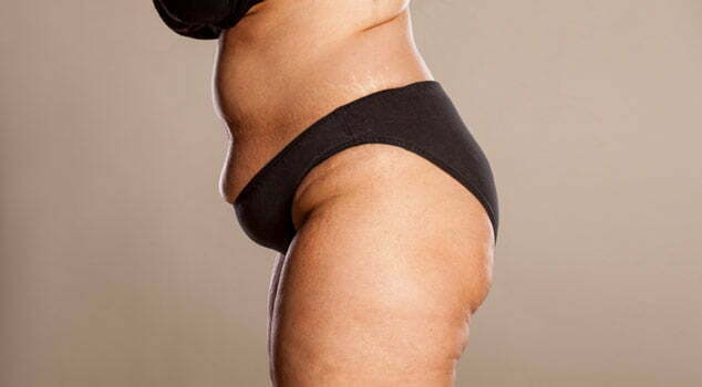 Overvektig person